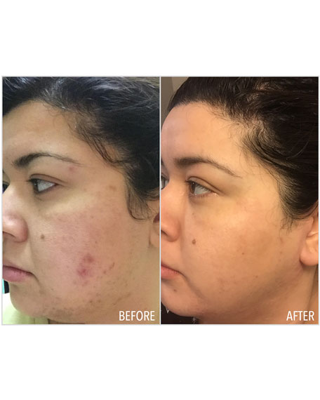 Retexturizing Treatment Cream with 10% Glycolic Acid, 1.7 oz./ 50 mL