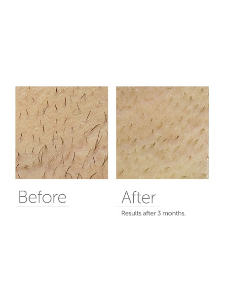 Precise Touch Permanent Hair Reduction With 300,000 Flashes