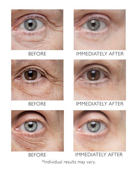 Peter Thomas Roth Instant FirmX Eye, 1 oz./ 30 mL