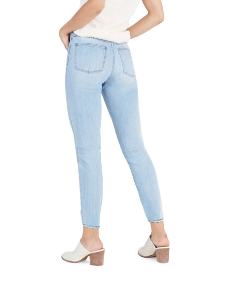 Madewell High-Rise Skinny Jeans with Button Front