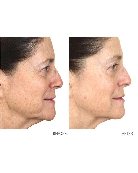 Conture Kinetic Skin Toning System
