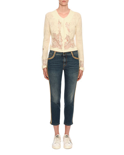 Slim Fit Side-Embellished Jeans and Matching Items