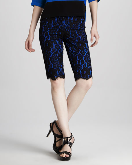 Lace Bermuda Shorts