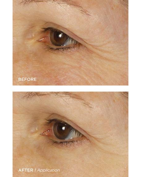 BeautyBio Bright Eyes&#153 Illuminating Colloidal Silver + Collagen Eye Patch